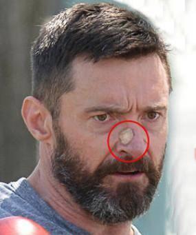 Clomid beard growth