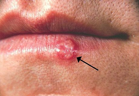Elenolic acid from hydrolyzed Oleuropein might work against Herpes 1