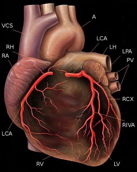 Human_heart_with_coronary_arteries