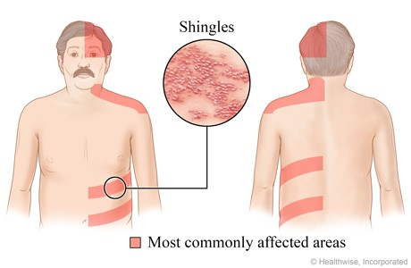 Shingles Vaccine for Recurrent Herpes Simplex - Jeffrey Dach MD